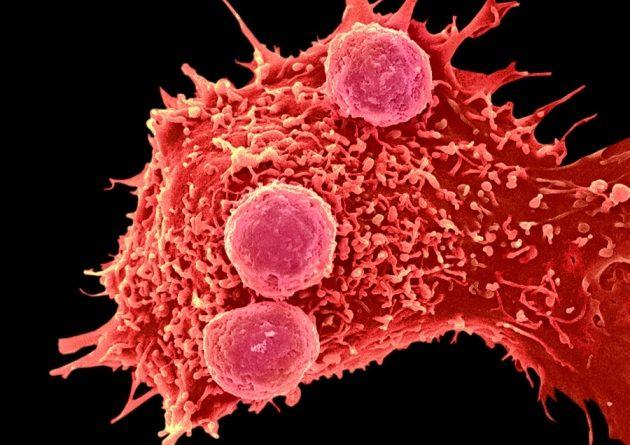 web_c0288799-cancer_cell_and_t_lymphocytes_sem-spl